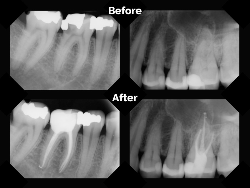 Thinking a Root Canal is the Death of Your Tooth? Think